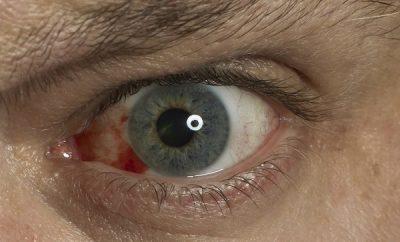 Aloe vera para los problemas oculares