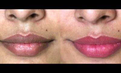 Cómo aclarar los labios oscuros naturalmente