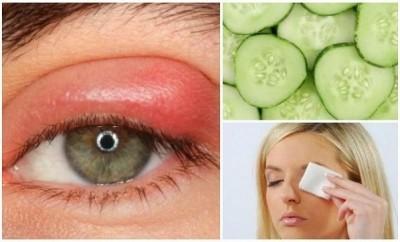 Cómo eliminar un orzuelo en el ojo
