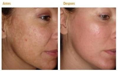 Mascarilla facial casera para quitar manchas