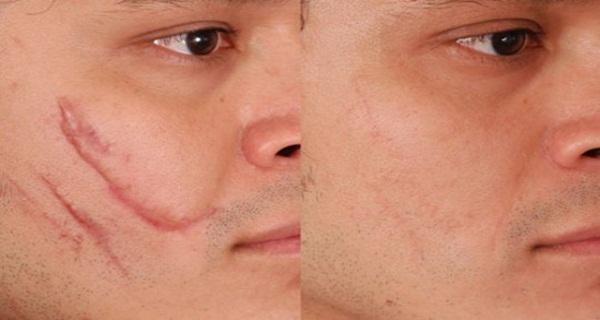 tratamiento natural para el acne pdf