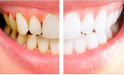 Remedio casero para eliminar la placa dental