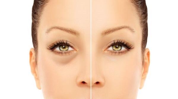 El jugo del aloe la máscara para la persona y alrededor de los ojos