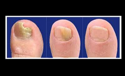 El medio público contra el hongo sobre las uñas del pie