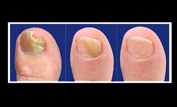 Que aconsejan los especialistas del hongo en los pies y las uñas