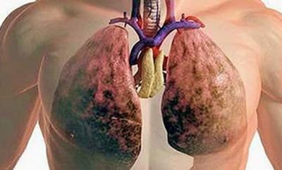 Cómo limpiar los pulmones de la nicotina