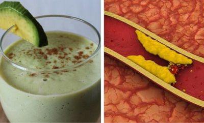Cómo bajar el colesterol con aguacate