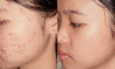 Mascarilla para eliminar el acné rápidamente