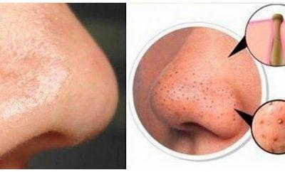 Mascarillas caseras para quitar las espinillas de la nariz