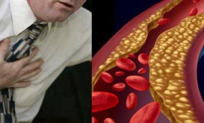 Remedio natural para limpiar las arterias del corazón