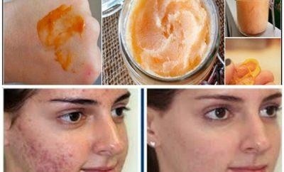 Mascarilla de mandarina para el acné