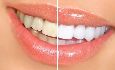 Remedio casero para blanquear dientes