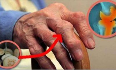 Cómo eliminar el dolor de las articulaciones