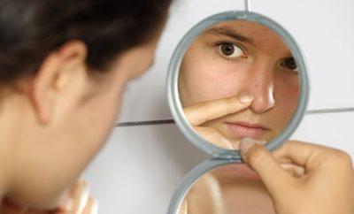 Cómo eliminar los puntos negros de la cara