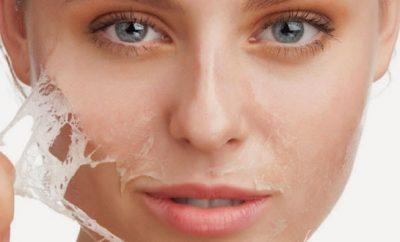 Cuidados después de un peeling quimico facial