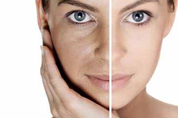 Despigmentación Facial