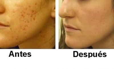 Peeling para piel acneica