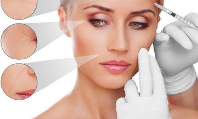Plasma rico en plaquetas para el rostro