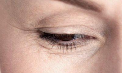 Cómo deshacerse de las arrugas en los ojos