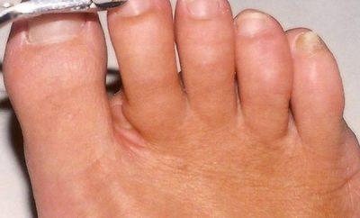 Cómo eliminar las uñas encarnadas