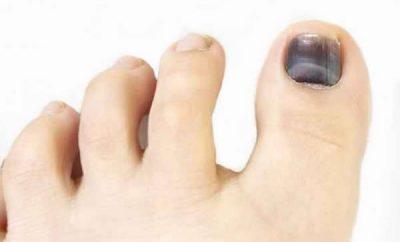 Cómo tratar las uñas con golpes y moretones