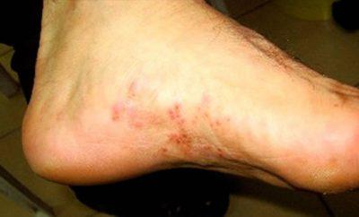 Solución casera para el pie de atleta