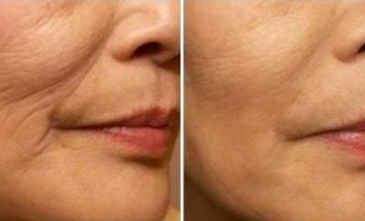 Tratamientos para rejuvenecer el rostro sin cirugía