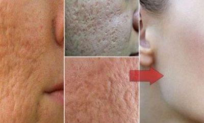 Cómo cerrar los poros de forma natural