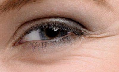 crema-antiarrugas-natural-para-el-contorno-de-ojos