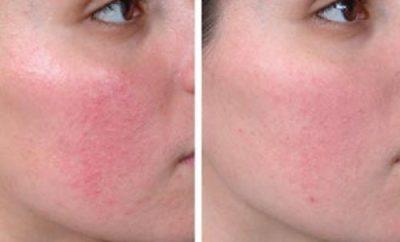 remedios-caseros-para-curar-la-piel-rosacea