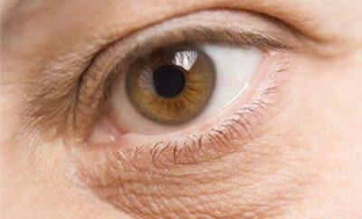 remedios-caseros-para-eliminar-la-piel-seca-de-los-ojos