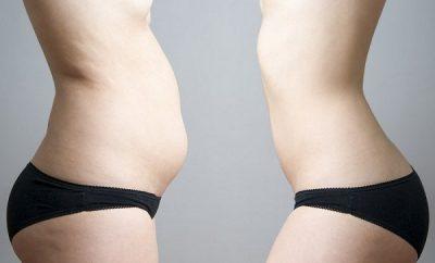 remedio efectivo para eliminar la grasa abdominal