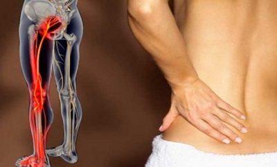 remedios caseros para aliviar la ciatica