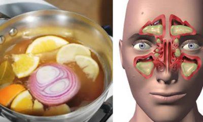 Remedio para la congestión nasal, sinusitis y gripe