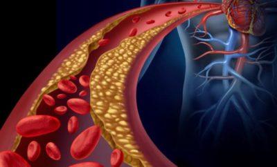 remedios natural para limpiar las arterias obstruidas