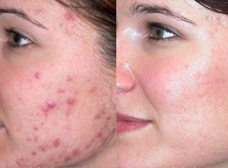 como hacer la mascarilla de pepino para el acne, mascarilla para el acné