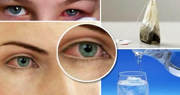 como aliviar la irritacion de los ojos, recetas
