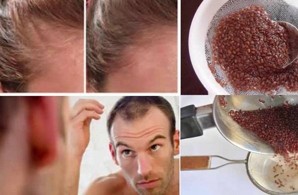 como hacer agua de linaza para la caida del cabello