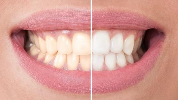 como hacer un blanqueador de dientes natural